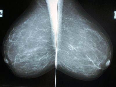Medical Fetish Mammograms